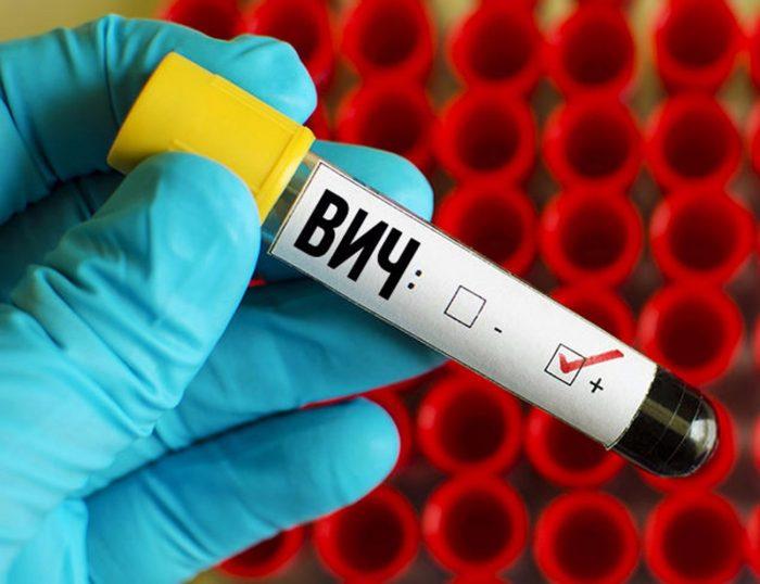 заражение ВИЧ-инфекцией